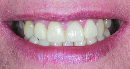 dental implants in northern ireland