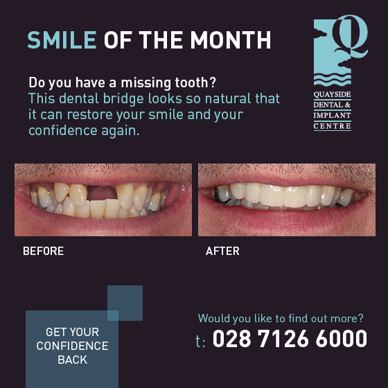 smile of the month Feb 2017