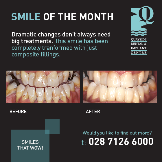 smile of the month june 2017