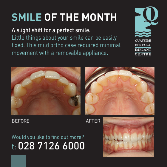 smile of the month January 2016